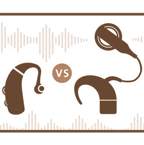 ผ่าตัด ประสาท หู เทียม ประสาทหูหนวก ประสาทหูเทียมเหมือนเครื่องช่วยฟังหรือไม่