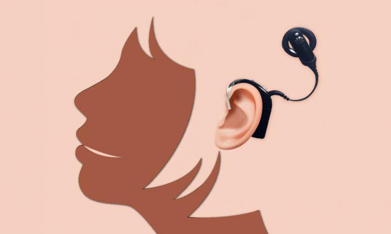 ผ่าตัด ประสาท หู เทียม ประสาท หูหนวก ประสาทหูเทียม