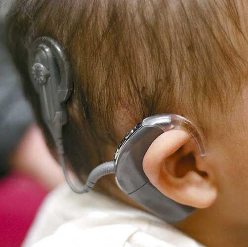 ผ่าตัด ประสาท หู เทียม ราคา ผ่าตัด หูนวก รู้จักกับประสาทหูเทียม)
